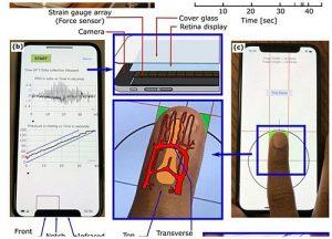 Ứng dụng cho iPhone giúp đo huyết áp